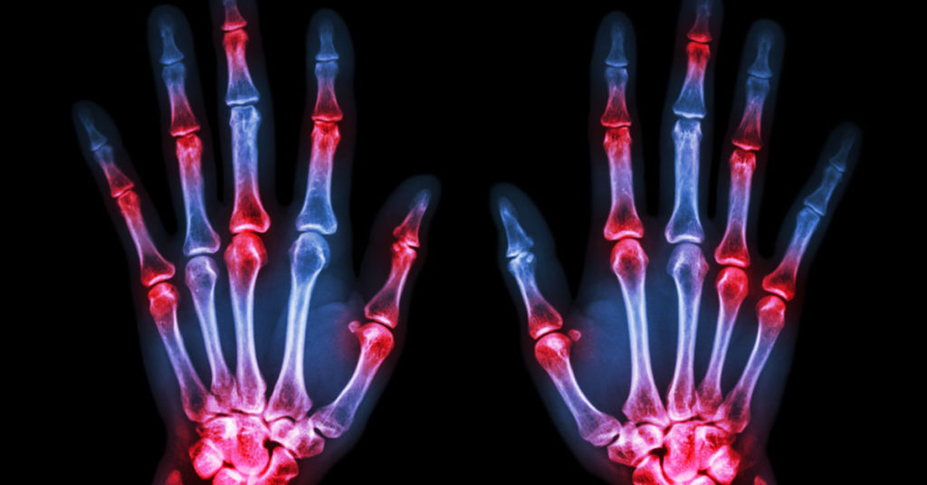 Six Surprising facts about Arthritis You Didn't Know Before