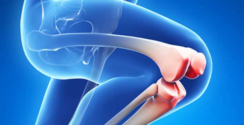 Five Tips for Faster Knee Replacement Surgery Recovery