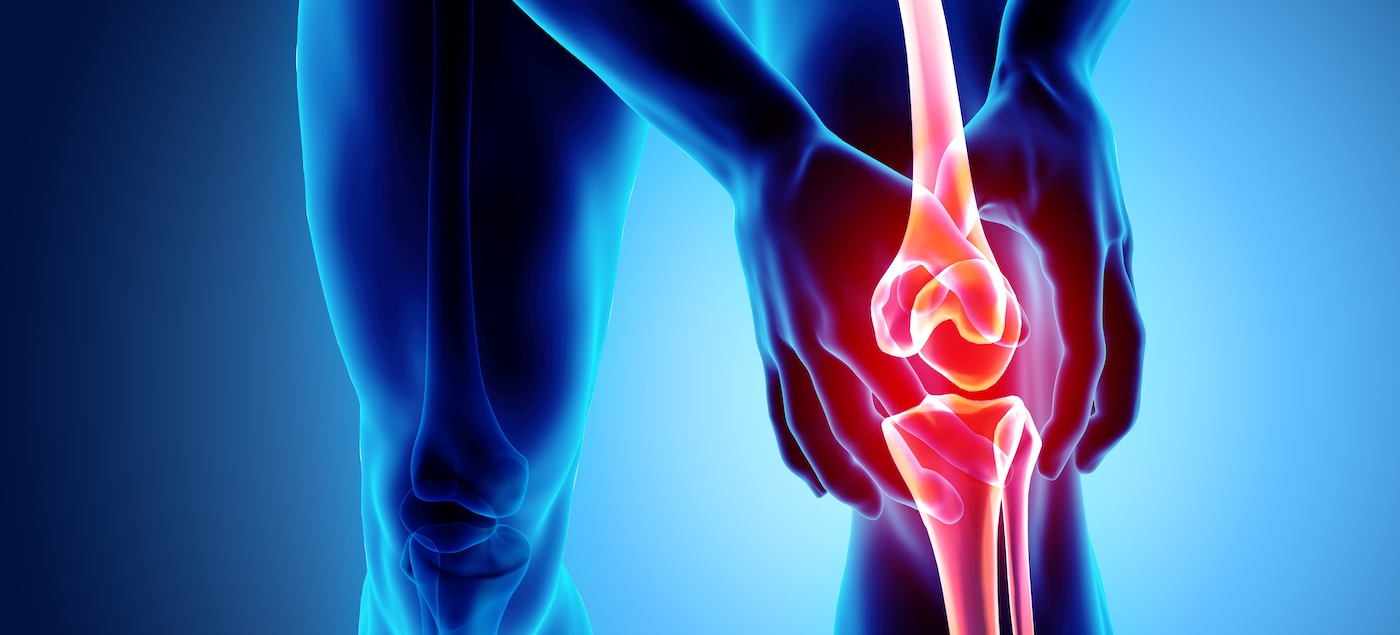 What do you do if you are diagnosed with Arthritis? What do you need to know?