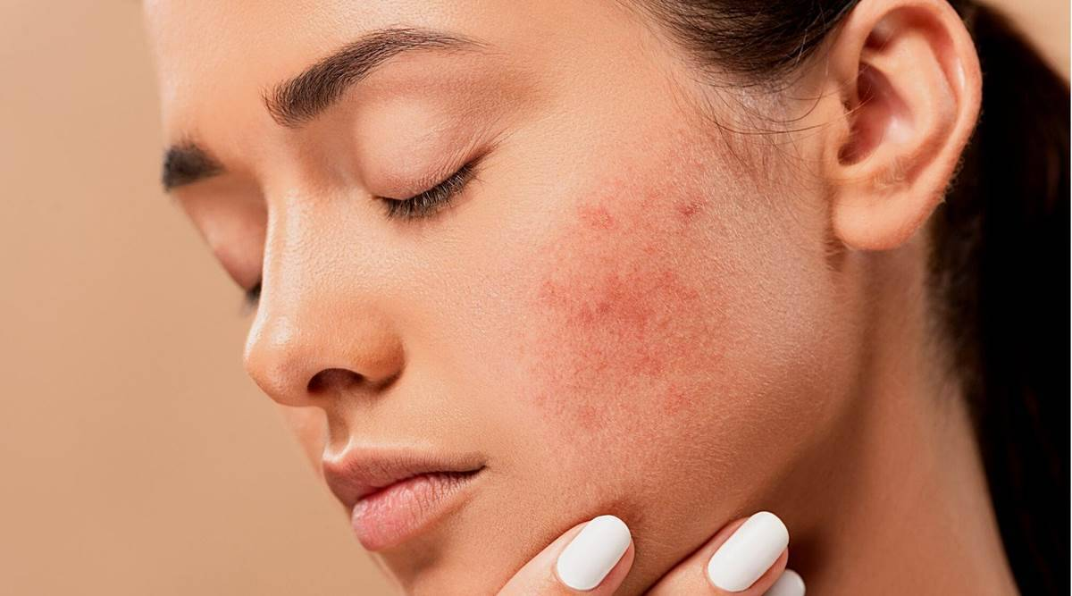 Are you troubled by pimples? Follow these 5 home remedies