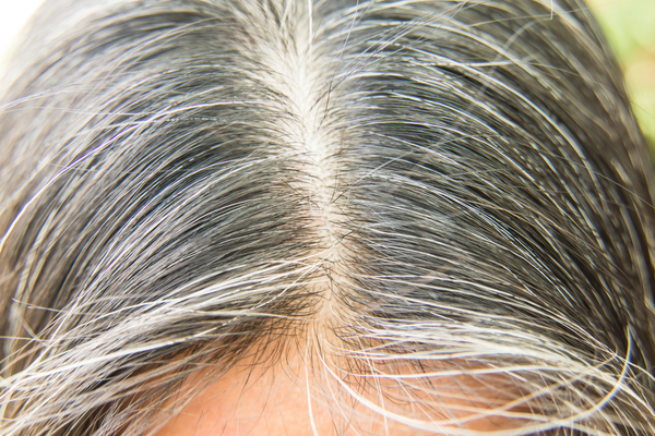 How to get rid of white hair?