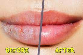 How to get rid of chapped and dry lips?